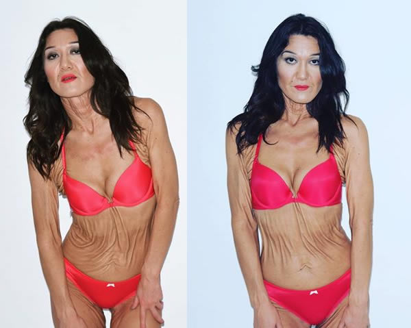 Sara Geurts, la donna americana di 26 anni che ha imparato ad amare le suerughe